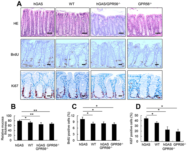Inactivation of the GPR56 gene inhibits progastrin-dependent colonic proliferation.