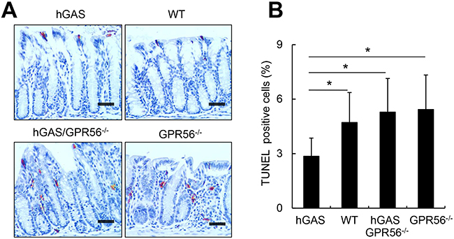 Inactivation of the GPR56 gene increases colonic apoptosis in hGAS mice.