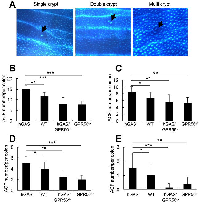 Inactivation of the GPR56 gene inhibits progastrin-dependent colonic ACF formation.