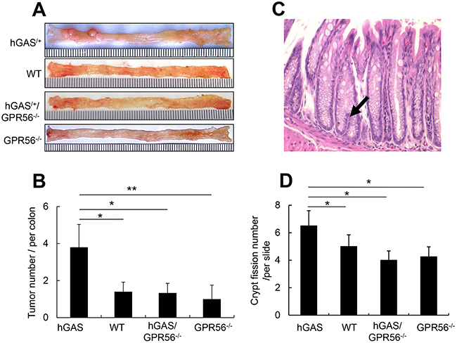 Deletion of the GPR56 gene inhibits progastrin-dependent colorectal tumor formation and colonic crypt fission.