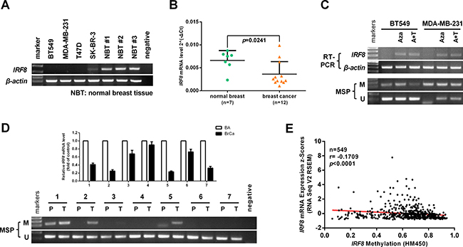 Promoter methylation contributes to IRF8 downregulation in breast cancer cells.