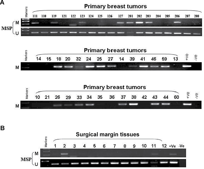 Promoter methylation status of IRF8 in primary breast cancers.