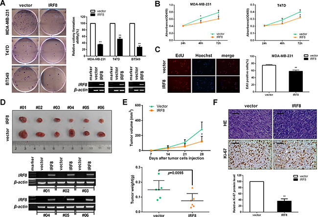 IRF8 suppresses cell proliferation in vitro and in vivo.