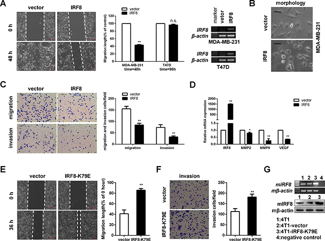 IRF8 suppressed cell migration and invasion in MDA-MB-231 and 4T1 cells in vitro.