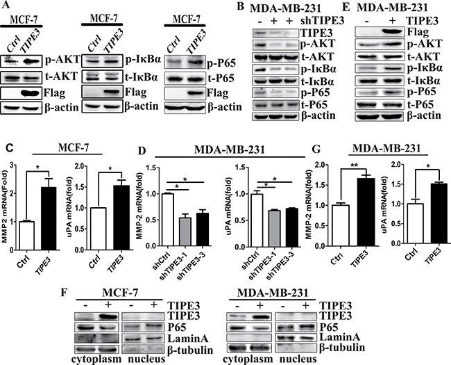 TIPE3 upregulated the expression of MMP2 and uPA, and promoted the activation of AKT and NF-κB.