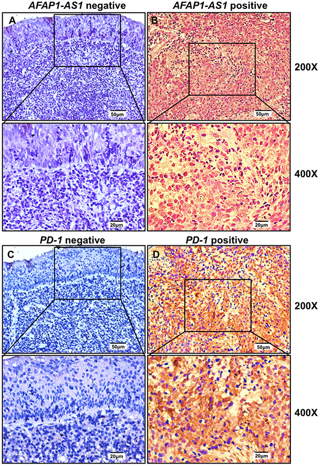 AFAP1-AS1 and PD-1 are highly and jointly expressed in infiltrating lymphocytes of NPC tissues.