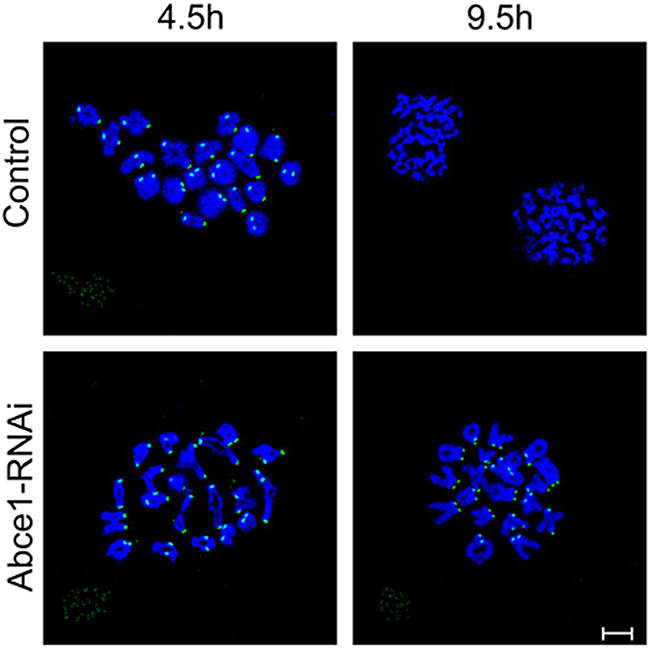 Abce1 knockdown causes activation of the spindle assembly checkpoint.