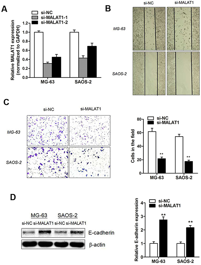 Knockdown of MALAT1 promoted osteosarcoma cell migration and invasion capacity.
