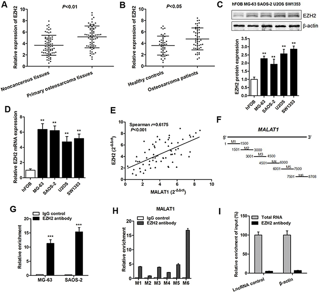 EZH2 is highly expressed and interacts mostly with the 3' end region of MALAT1 in osteosarcoma.