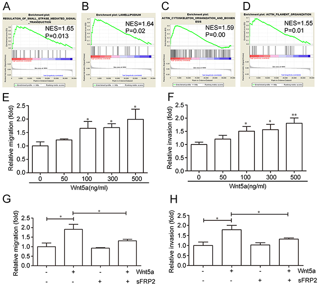 Effects of Wnt5a on adult T-ALL cell migration and invasion.