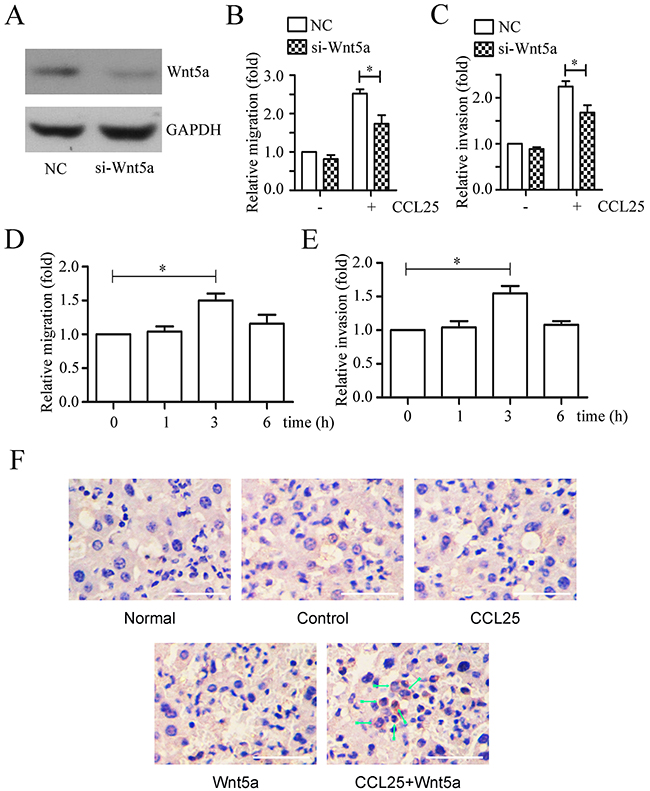 Effects of Wnt5a on CCL25-induced MOLT4 cell metastasis.