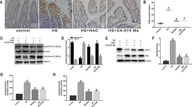 Effect of antioxidant NAC and cathepsin B inhibitor CA-074 Me in mitochondrial apoptosis pathway in vivo.