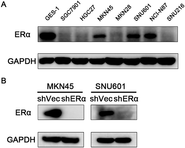 Expression of ERα in GC cells.