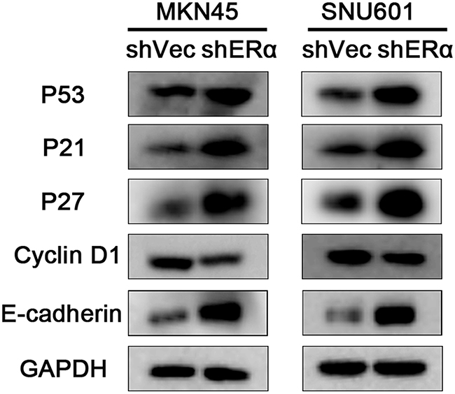 Downregulation of ERα suppressed the proliferation, migration and invasion of GC cells via regulating the expression of p53, p21, p27, cyclin D1 and E-cadherin.