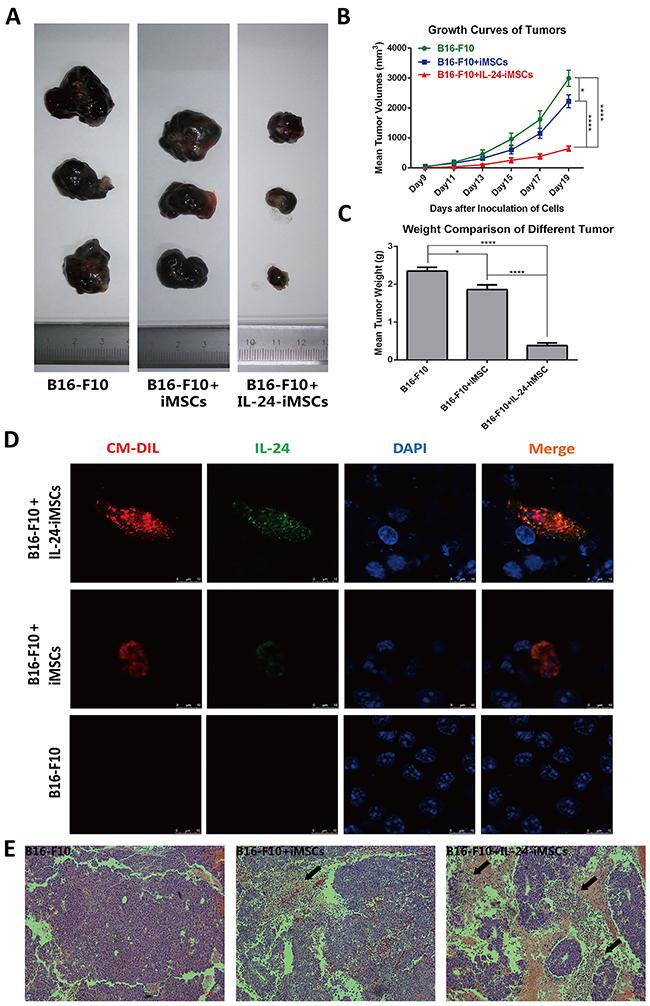 IL24-iMSCs in vivo suppressed melanoma growth.