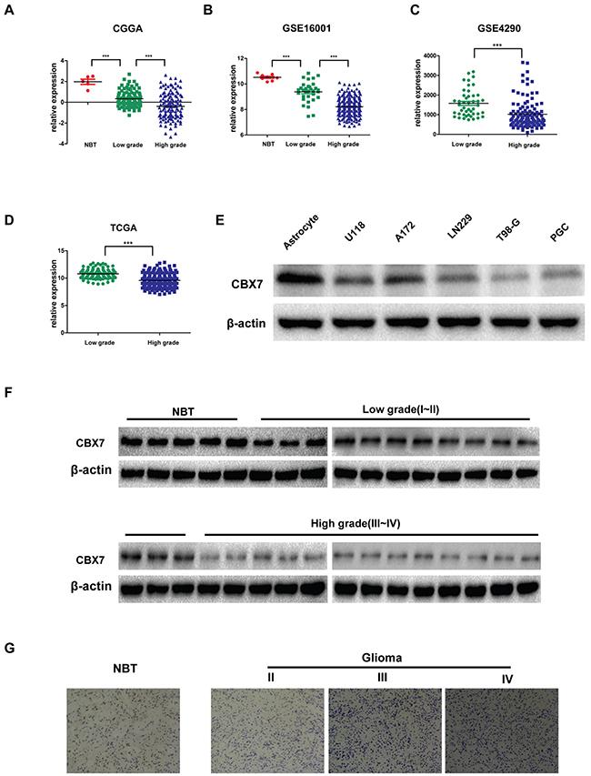 Decreased CBX7 expression confers high-grade glioma.