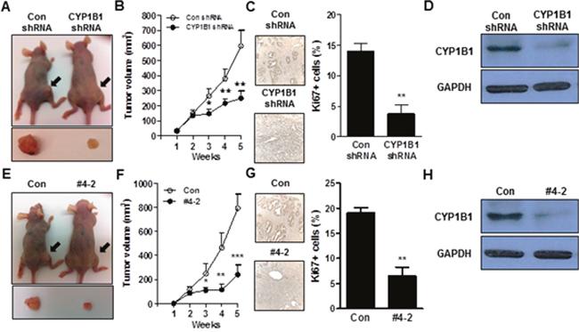 CYP1B1 inhibition suppresses in vivo tumor growth.