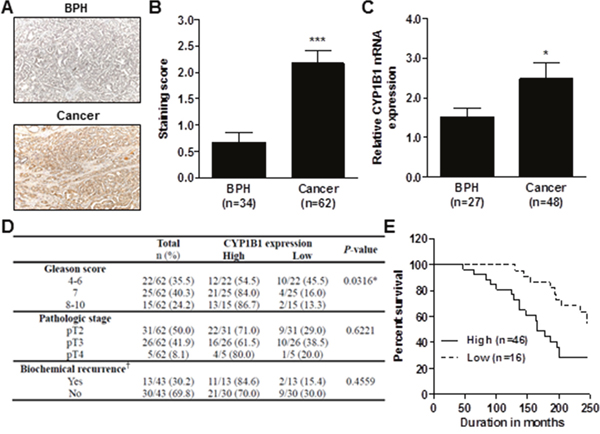 Association of CYP1B1 expression with clinicopathologic characteristics of PCa.