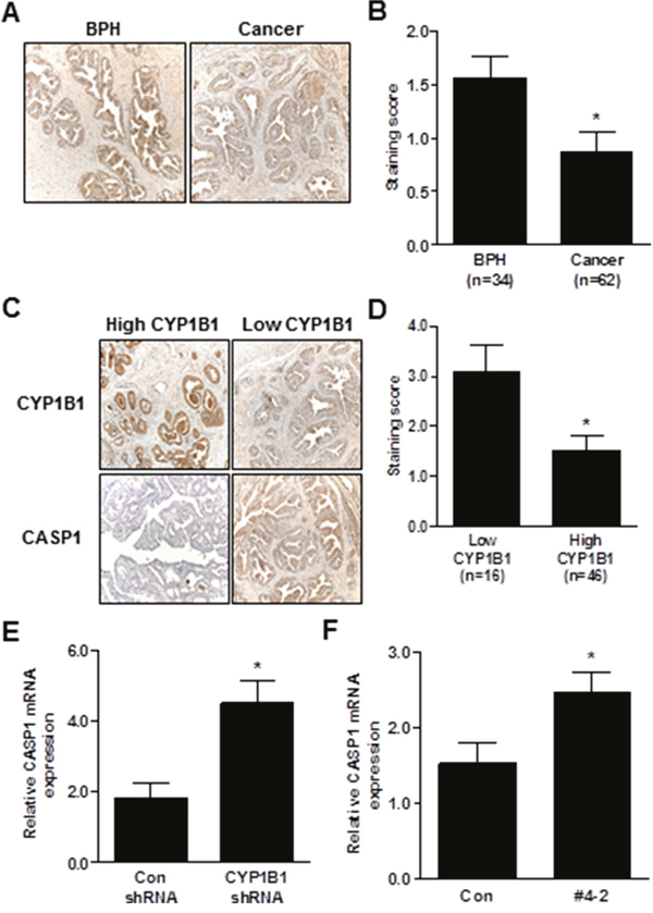 Inverse correlation between CYP1B1 and CASP1 expression.