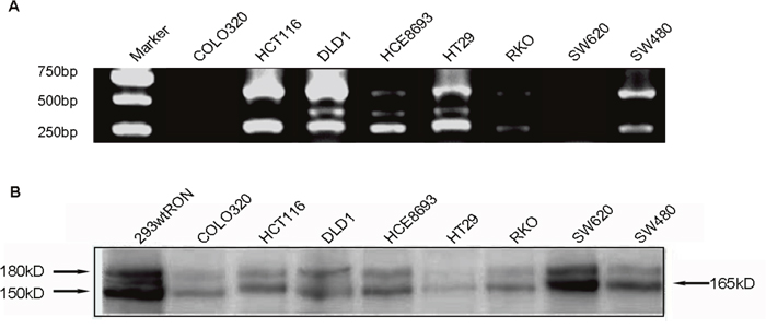 Detected the novel RON variant in CRC cell lines.