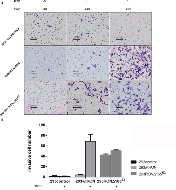 RONΔ165E2 improved the motility ability of HEK293 cells (×200).