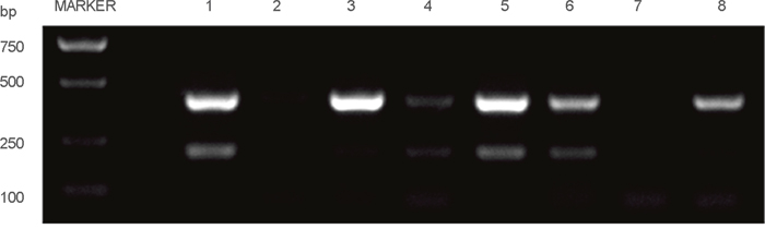 Part of the RT-PCR results among the clinical CRC specimens.