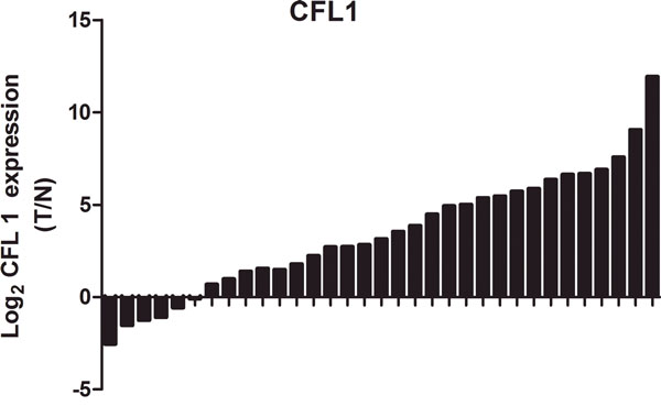 The expression of CFL1 was markedly higher in tumor tissues than in matched adjacent normal tissues.