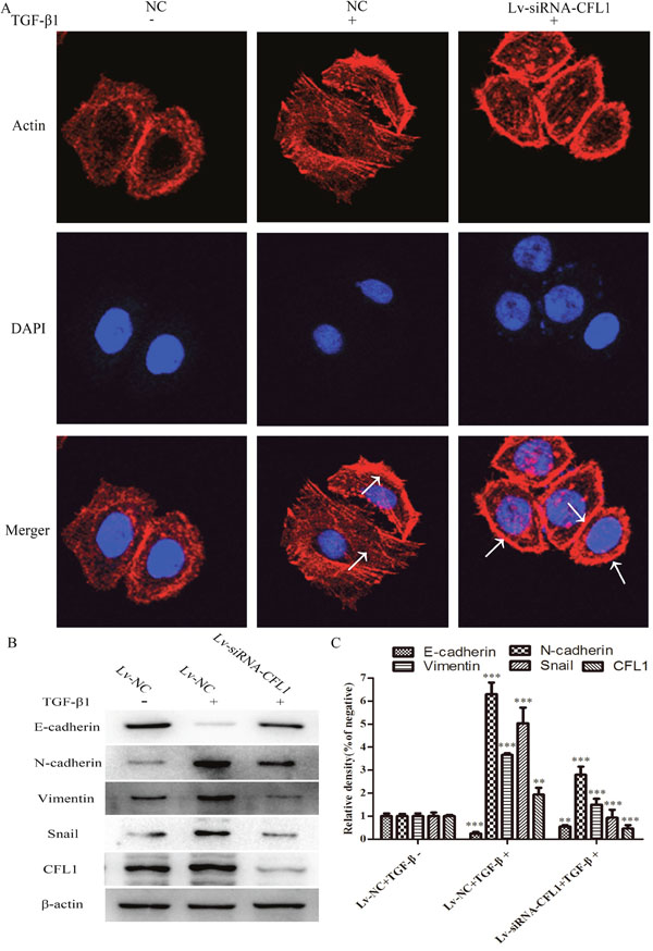 Lv-siRNA-CFL1 suppressed cytoskeletal reorganization and the EMT.