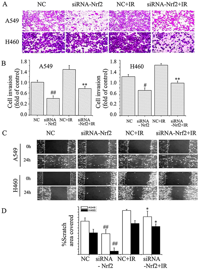 Suppression of Nrf2 attenuated EMT in NSCLC cells.