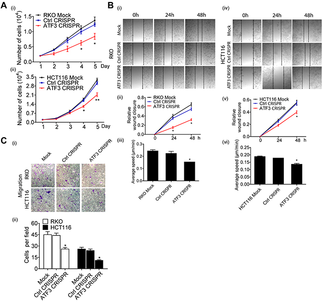 Functional characterization of ATF3 expression related to migration in CRC.
