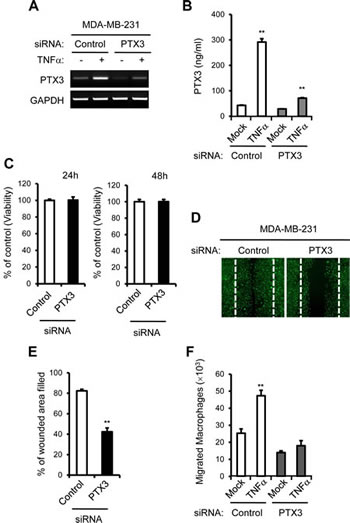 PTX3 knockdown reduces breast cancer cell migration and macrophages migration to cancer cells.