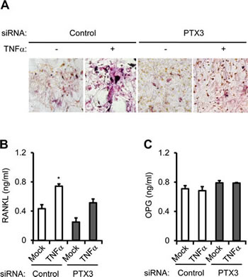 PTX3 knockdown in breast cancer cells reduces OC differentiation and activation.