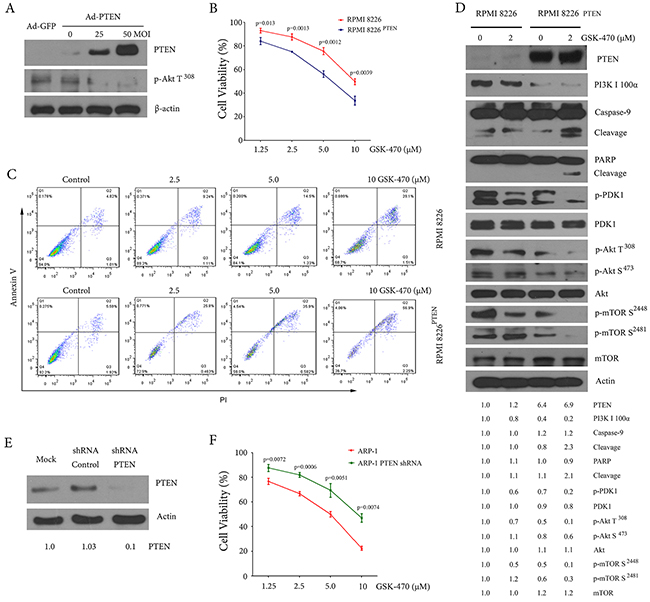 PTEN status affects GSK-470-mediated anti-myeloma effect.