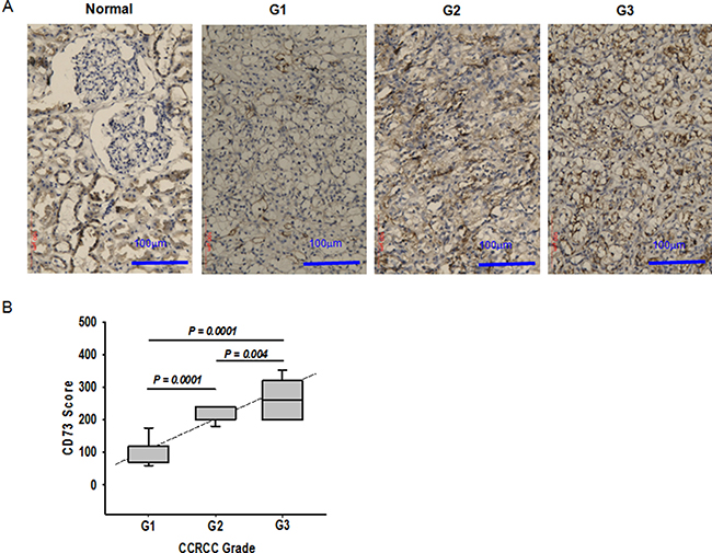 Association of CD73 expression with ccRCC progression.