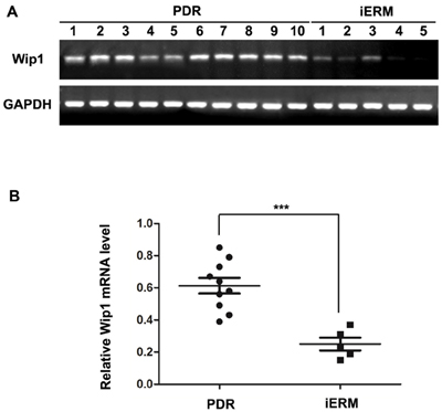 qRT-PCR analysis of Wip1 expression in ERMs derived from patients.