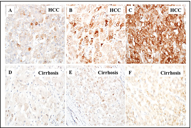 Immunohistochemical staining of p62 protein in HCC and the adjacent non-tumorous cirrhotic liver.