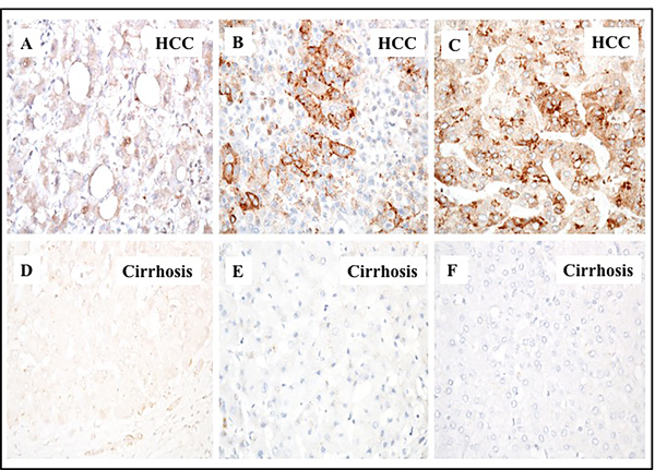 Immunohistochemical staining of glypican-3 protein in hepatocellular carcinoma and the adjacent non-tumorous cirrhotic liver.
