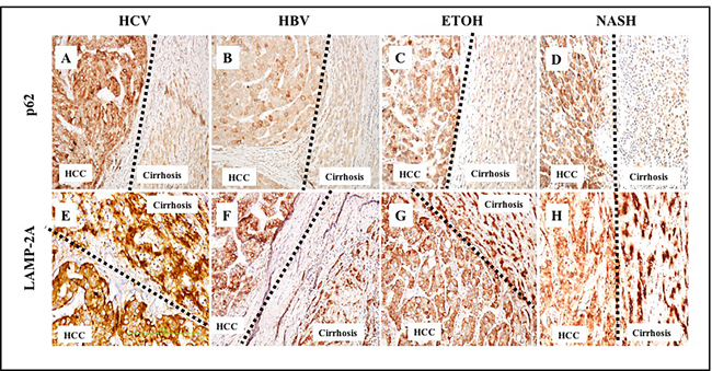 Comparative assessment of macroautophagy (inversely correlates with p62 expression) and chaperone-mediated autophagy (LAMP-2A expression directly correlates with CMA) among 46 cirrhotic liver samples with HCC.