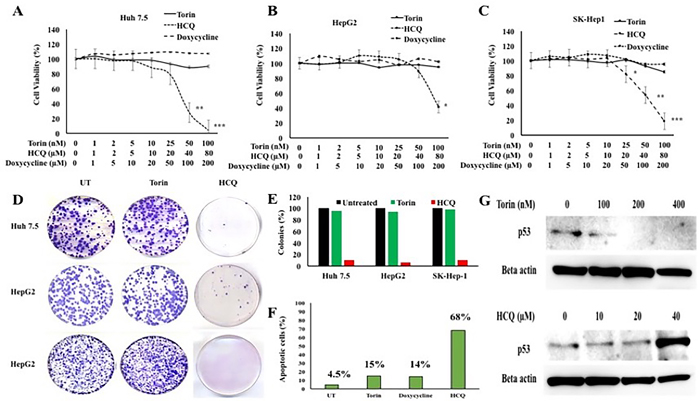 HCC cell proliferation in the presence of autophagy inducer, Torin 1 and autophagy inhibitor, HCQ.
