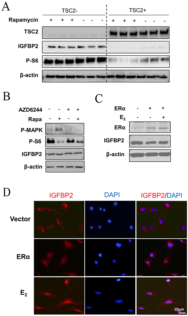 E2 induces nuclear translocation of IGFBP2 in LAM patient-derived cells.