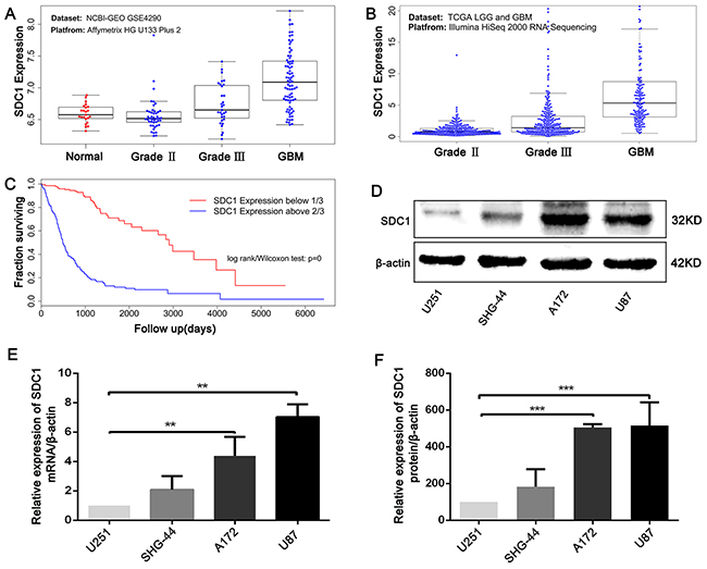 SDC1 is overexpressed in clinical glioma samples and glioma cell lines.