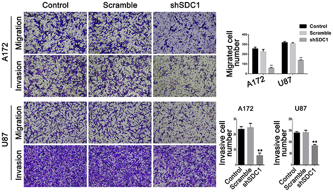 SDC1 knockdown decreases migration and invasion of A172 and U87 cells.