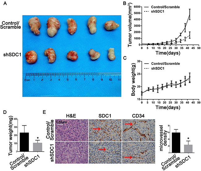 SDC1 knockdown inhibits growth and angiogenesis in subcutaneous tumor xenografts in nude mice.