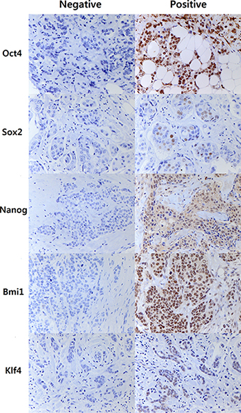 Representative images of immunohistochemal staining of embryonal stem cell transcription factors.