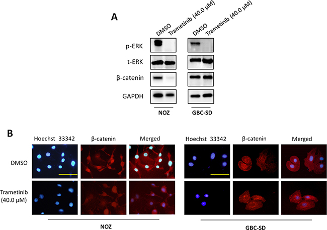 Inhibition of the activities of MAPK/ERK and Wnt/β-catenin pathways by trametinib.