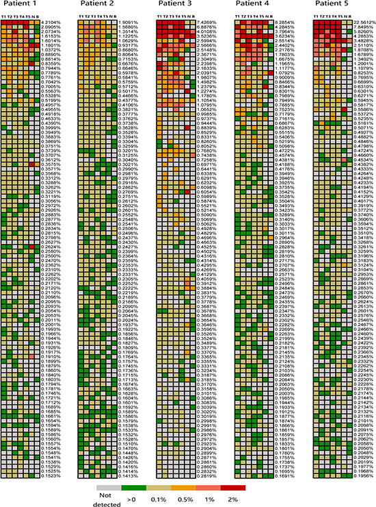 Regional frequencies of the 100 most abundant T cell clones in different samples of the five PLC patients.