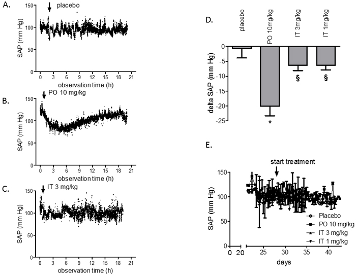Acute and chronic effects of BAY 41-8543 on systemic arterial pressure in monocrotaline model of PAH.