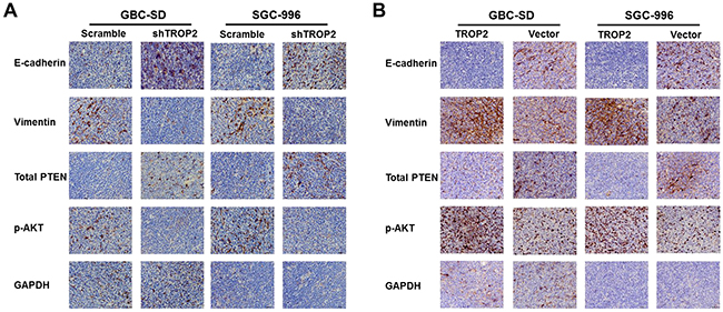 Effects of TROP2 on EMT and PI3K/AKT pathway in vivo.