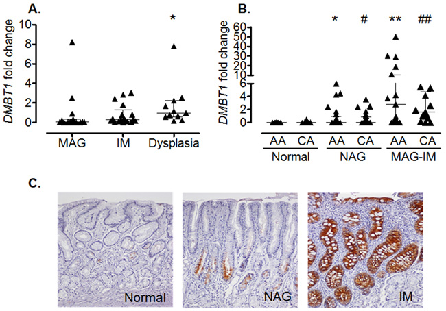 Increased DMBT1 expression in gastritis and precancerous lesions.
