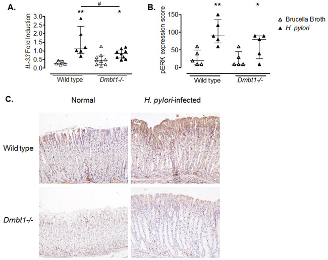 Decreased expression of IL-33 in H. pylori infected Dmbt1-/- mice.